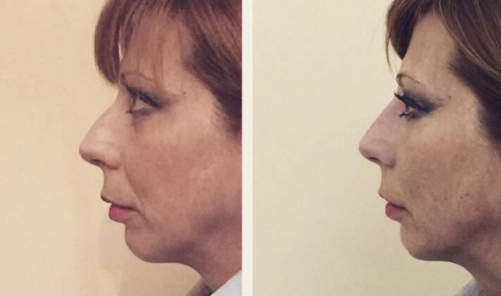 Profiloplastica non chirurgica (Rinofiller)